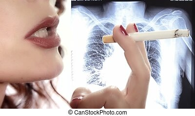 Smoker and x rays - Anti-smoking video. Danger of smoking