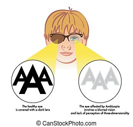 amblyopia lazy eye - medical illustration of the symptoms...