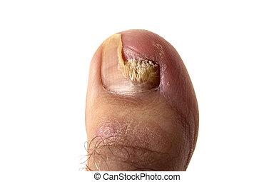 Toenail Fungus - An aggressive toenail fungus (closeup).