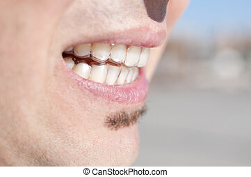 young man wearing clear retainers - closeup of the mouth of...