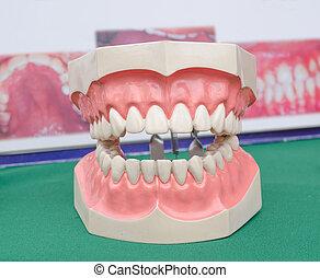 Dentoform, Dental teeth model