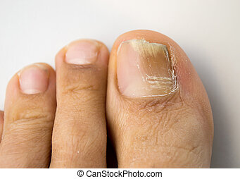 fungal nail infection - onychomycosis with fungal nail...