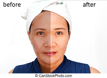 Cosmetic - Asian middle-aged woman before and after retouch,...