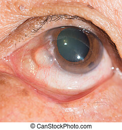 eye exam - close up of the conjunctival cyst during eye...