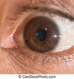 eye exam - close up of the traumatic cyclodialysis during...