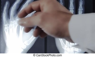 doctor examining x-ray picture of human hands