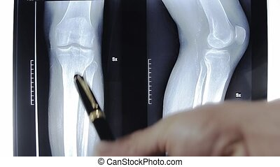 doctor examining x-ray picture of knees