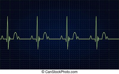 Heartbeat rate
