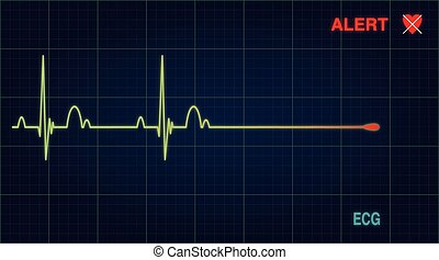 Flat line alert on a heart monitor Vector illustration Eps...