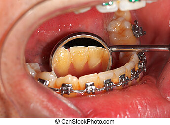 Dental braces - Picture of a dental brace examination at a...