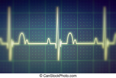 ECG EKG monitor - Flatline blip on a medical heart monitor...