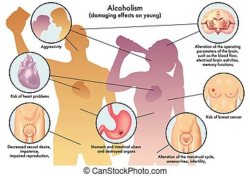 youth alcoholism - medical illustration of the damage caused...