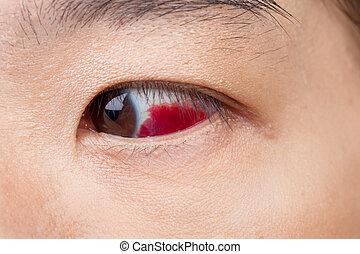 ojo, lesión, o, infected, para, sano, concepto,...