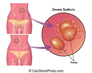 severe sunburn - medical illustration of the consequences of...