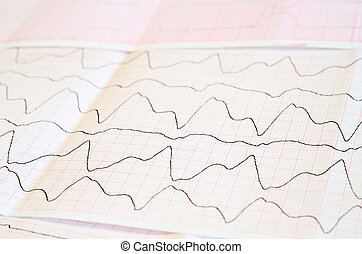 ECG tape with paroxysmal ventricular tachycardia - Emergency...