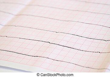 Tape ECG with ventricular asystole - Emergency cardiology...