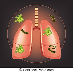 Lungs with germs and bacteria