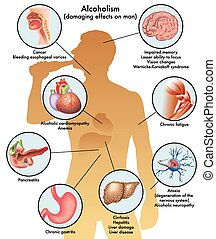 male alcoholism - medical illustration of the damage caused...