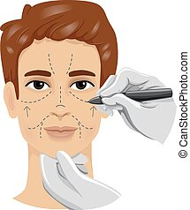 Man Incision Lines - Illustration of a Man Having His Face...