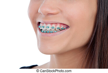 Attractive young woman with brackets
