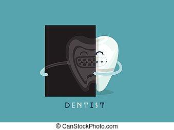 radiografía, diente,