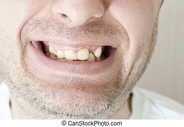 Diseased teeth of the patient Tartar and tooth decay