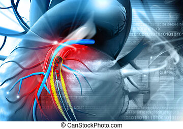 Stent, angioplastia, procedimento, com, colocar, Um,...