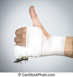 Broken pinky - Bandaged hand with a broken pinky finger with...