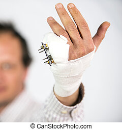 Fractured pinky finger - Fractured hand with an external...