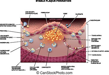 Stable plaque formation in the human artery Atherosclerosis...