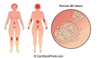 psoriasis - medical illustration of the effects of psoriasis...