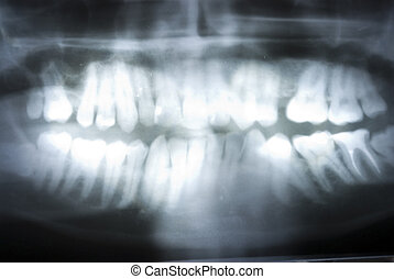 x ray - dental x ray on full background