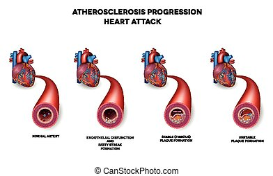 Heart attack, Coronary artery disease. Heart muscle damage...