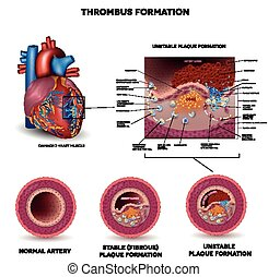 Blood clot formation. Coronary artery disease. Anatomy of...