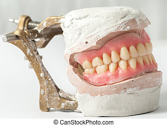 Denture - Dental plate making of in the lab