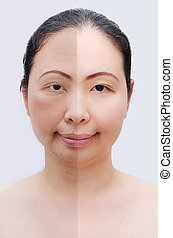 Portrait of asian woman before and after botox Young and old...