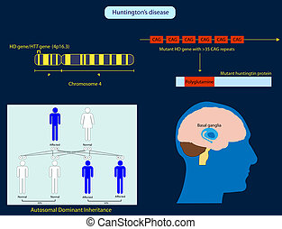 Huntingtons Disease - Illustration of the basic...