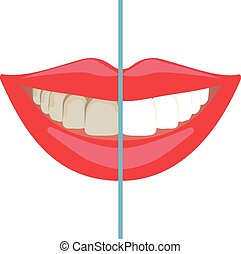 Before and after teeth whitening - Bleaching treatment...