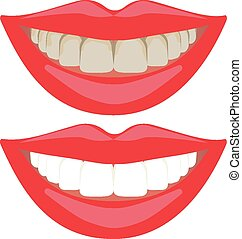 Teeth whitening comparison - Bleaching treatment ,before and...