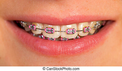 Beautiful lips - Extremely close up of a pink dental braces