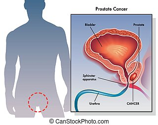 Prostate Cancer - medical illustration of the effects of...