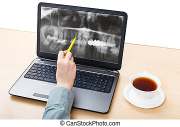 dentist analyzes X-ray picture of jaws on laptop