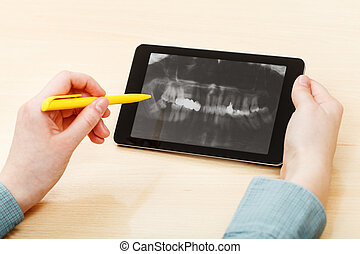 student analyzes human jaws on tablet pc - student analyzes...