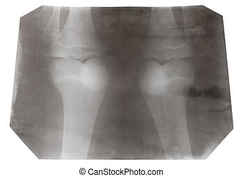 X-ray picture of two human knee-joints isolated on white...
