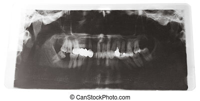 X-ray picture of human jaws with dental crown isolated on...