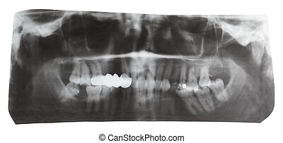 dental X-ray picture of human jaws isolated on white...