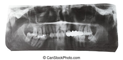 dental X-ray picture of human teeth isolated on white...