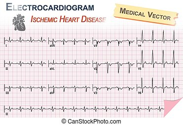 Electrocardiogram ECG , EKG of Ischemic Heart Disease...