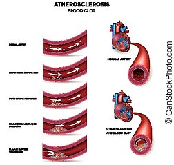 Atherosclerosis stages - Atherosclerosis Detailed...