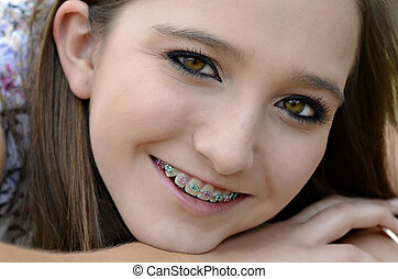 Teenage Girl with Braces - A beautiful young teen smiling...
